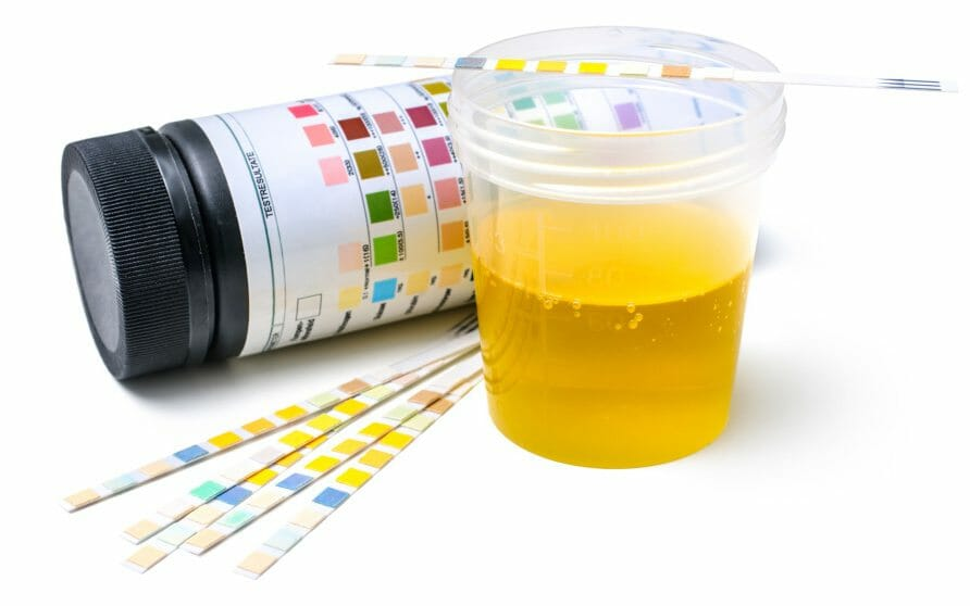 urine in a cup with strips