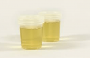 urine in cups