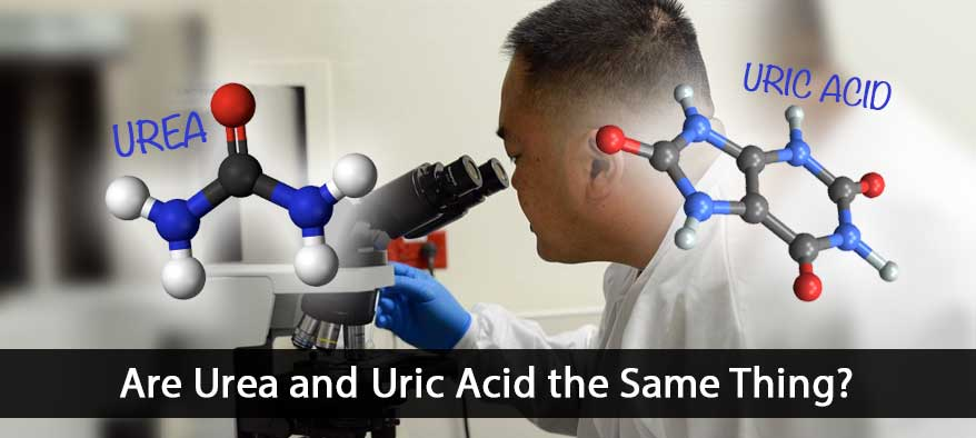 Uric Acid and Urea