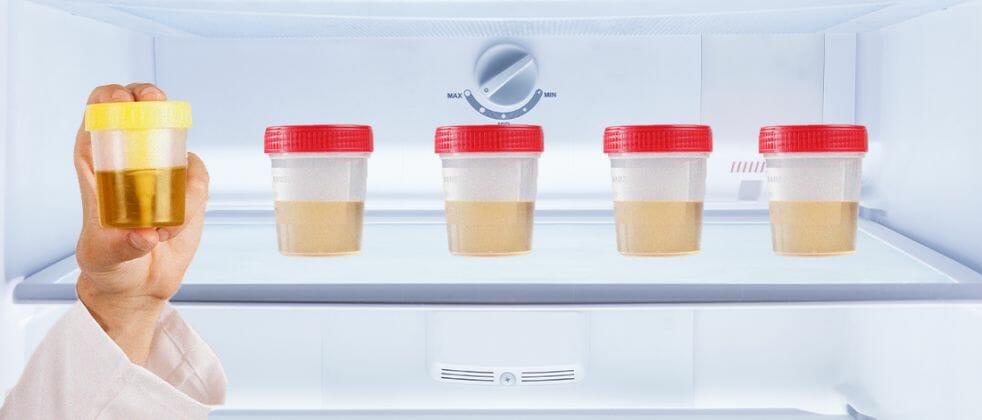 Different urine samples on freezer