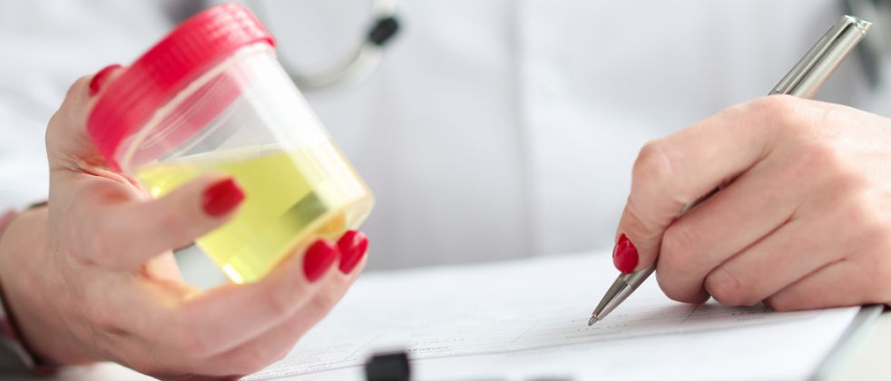A professional writing on a paper while holding a urine sample